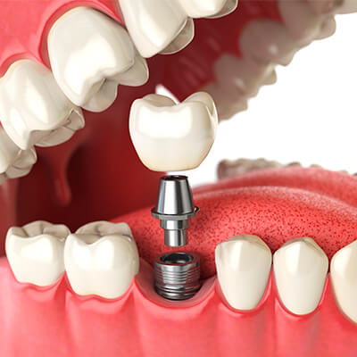 An image of dental implants